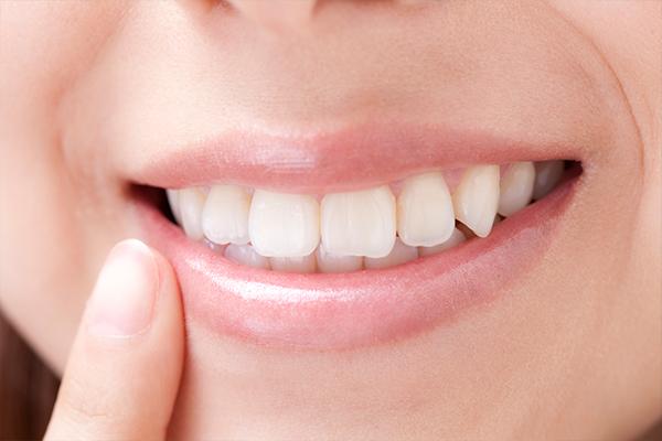 """""""見た目+機能性""""の白くて自然な歯"""